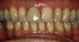 Bonding & Veneer - Before