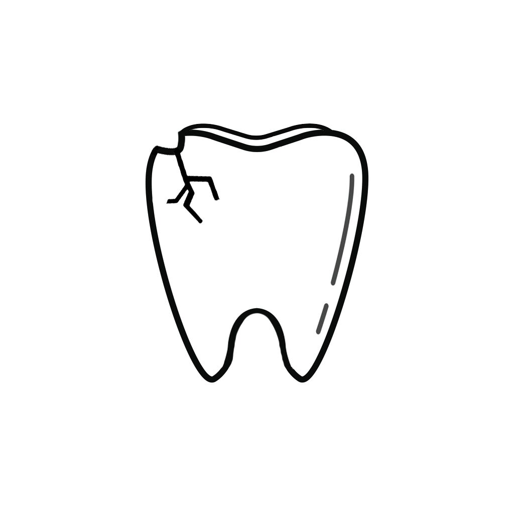 Edmond OK Dentist | I Chipped a Tooth! What Can I Do?