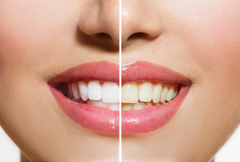 Stained Teeth | 73034 Dentist